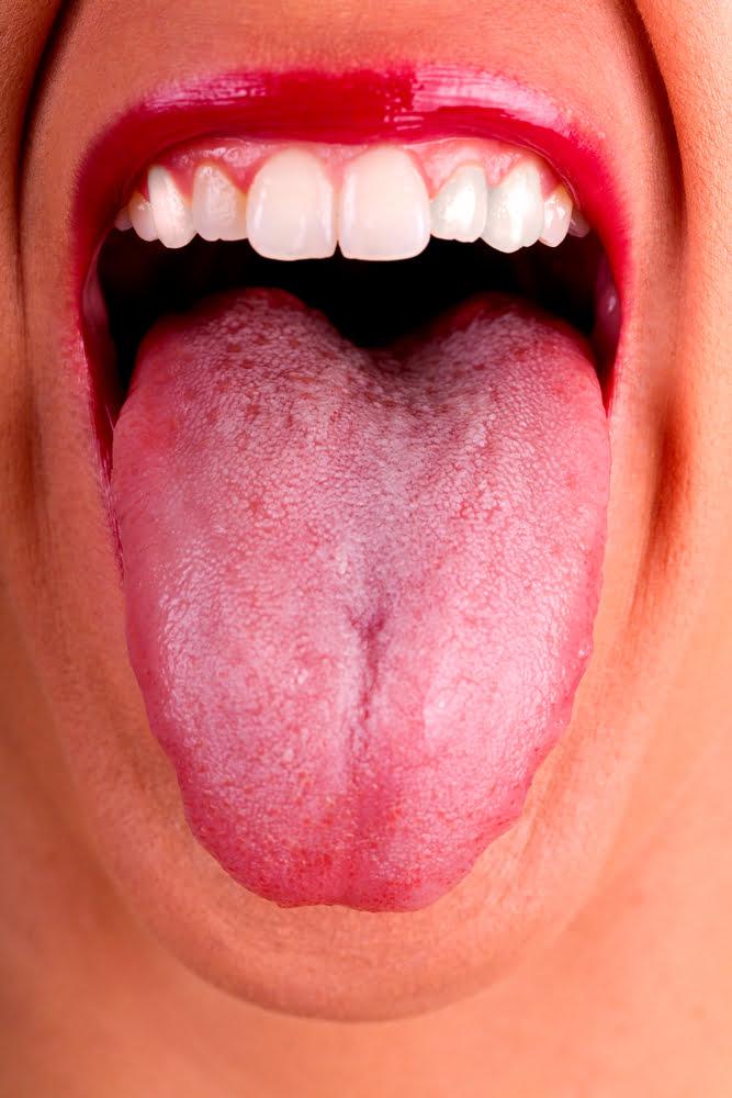 Weight Loss and Bad Breath (woman showing tongue)