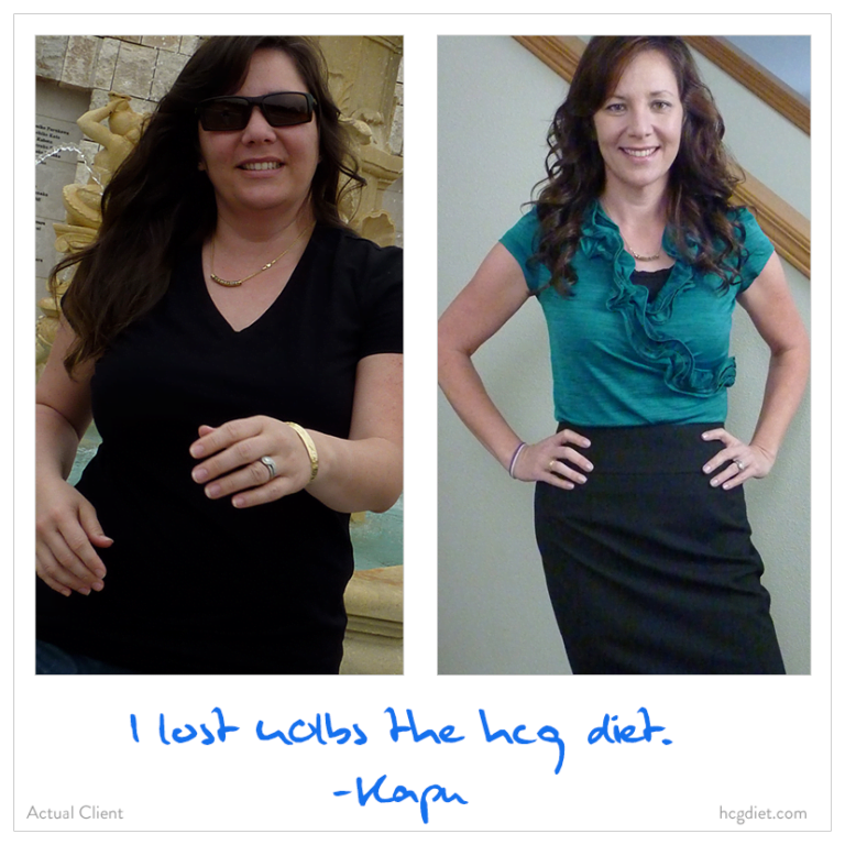 HCG Weight Loss success stories 1