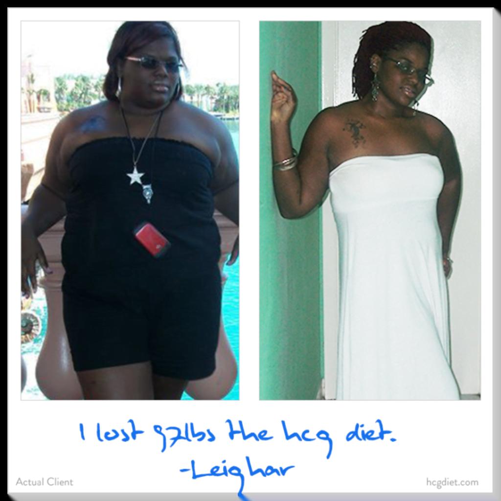 HCG Weight Loss success stories 2